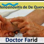 Tenosinovitis de De Quervain, Relato de Armando
